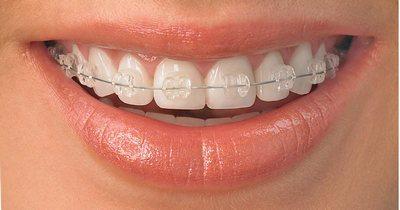 Лечение у ортодонта