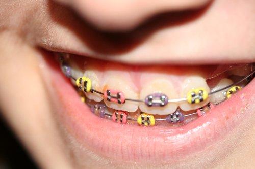 Брекеты как часть ортодонтического лечения