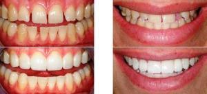 Наращивание (реставрация) зубов